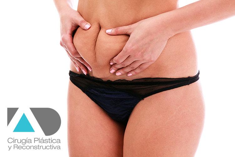 Abdominoplastia Dr. Angel Dorador
